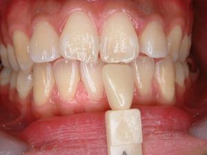 Before:歯が黄ばんでいます